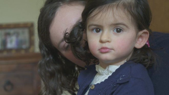 Sólo 500 personas en el mundo padecen la condición de Anya