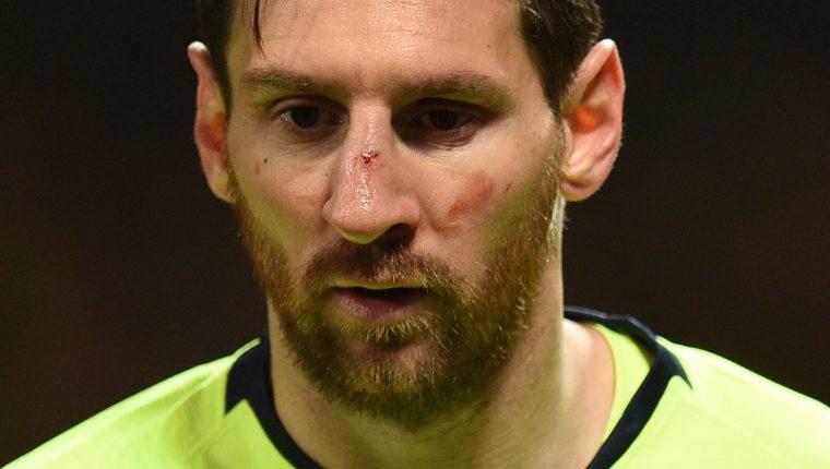 La mirada de perdida de Lionel Messi después de recibir un golpe en el rostro. (Foto Prensa Libre: AFP)
