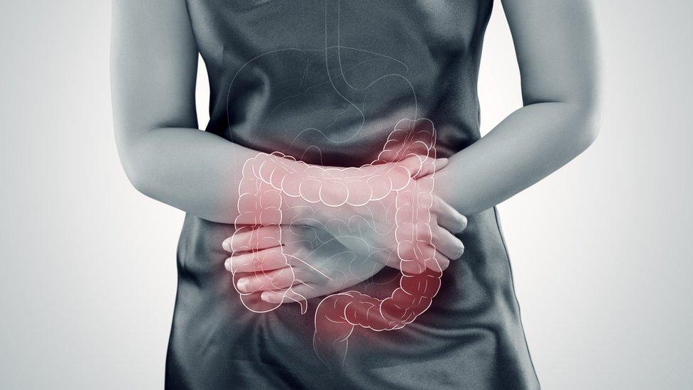 Cómo una terapia psicológica me ayudó a reducir los efectos del síndrome del colon irritable