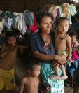 La desnutrición aguda va en aumento en Guatemala, según cifras del Ministerio de Salud. (Foto Prensa Libre: Hemeroteca PL)