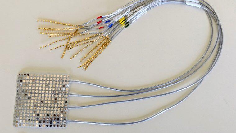 Un estudio publicado por la revista Nature habla de este dispositivo para mejorar la comunicación de personas con ciertas condiciones neurológicas.   (Foto Prensa Libre: EFE/Nature)