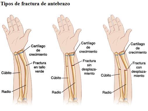 tiempo de recuperacion de fractura de cubito y radio