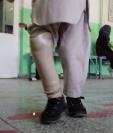 Así luce la nueva prótesis del pequeño Ahmad. (Foto BBC News Mundo)