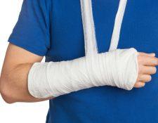 La recuperación de una fractura de brazo depende de la parte afectada, la edad y estado de salud del paciente.