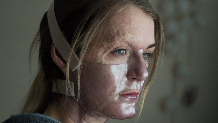 Vicky Knight odió sus cicatrices desde que era niña hasta que la actuación le hizo ver las cosas diferente.