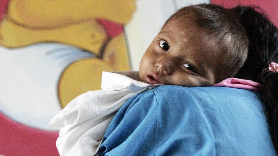 Elecciones en Guatemala: por qué los niños de este país son los que más desnutrición crónica sufren en América Latina (si no es el más pobre de la región)