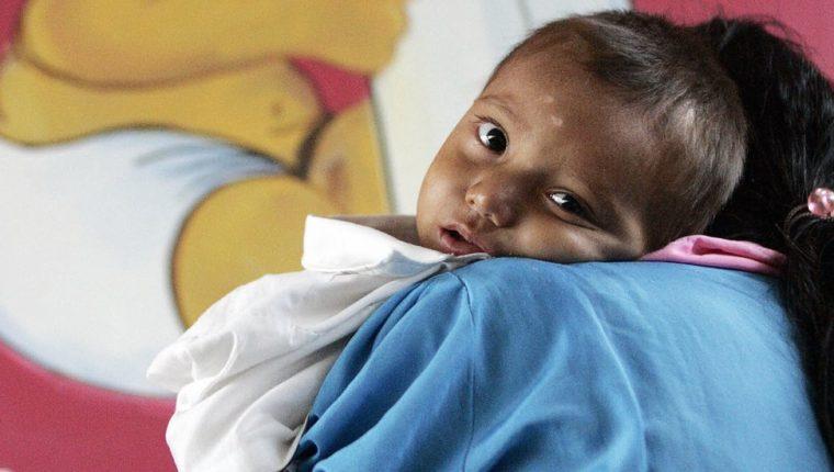 Guatemala lleva años ocupando el primer puesto de desnutrición crónica infantil en América Latina.