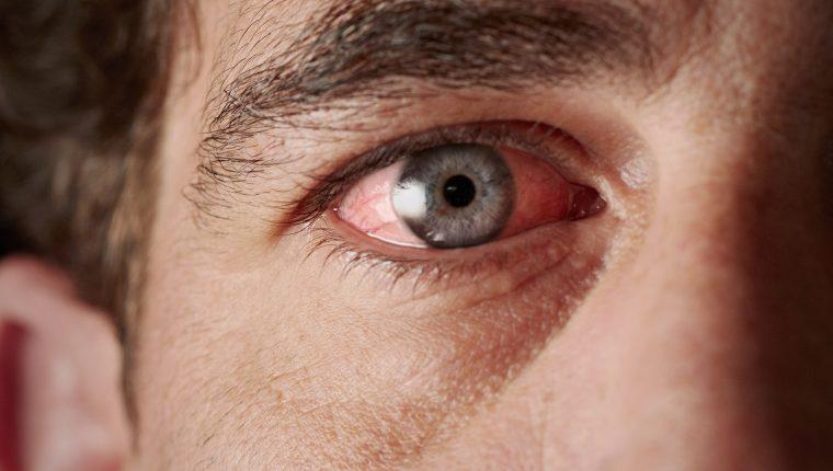 La uveítis es una enfermedad que consiste en la inflamación de la úvea, en los ojos. (Foto Prensa Libre: Servicios).