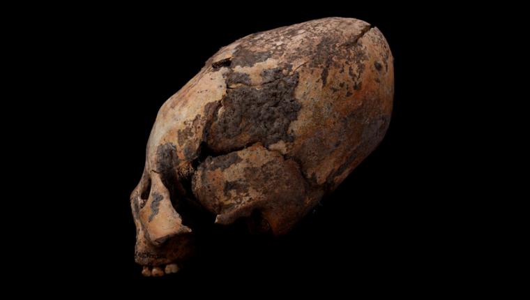 Los cráneos se deformaron para darles un aspecto alargado.