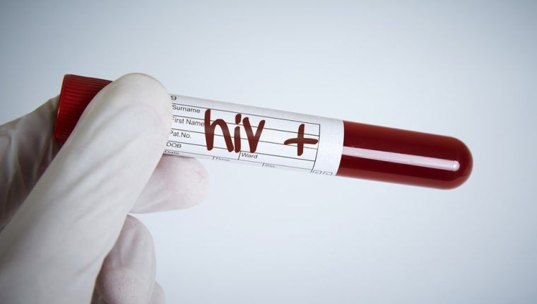 La ONU sigue trabajando para erradicar el VIH (o HIV, en inglés).