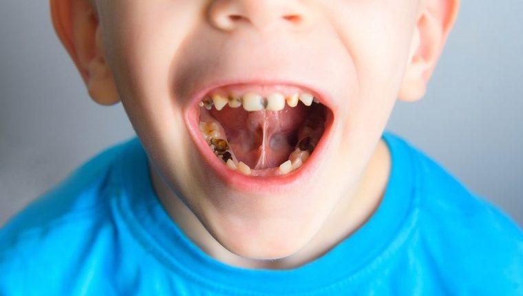 La mayoría de niños del mundo padecen de caries, pero no todos reciben el tratamiento necesario a tiempo.