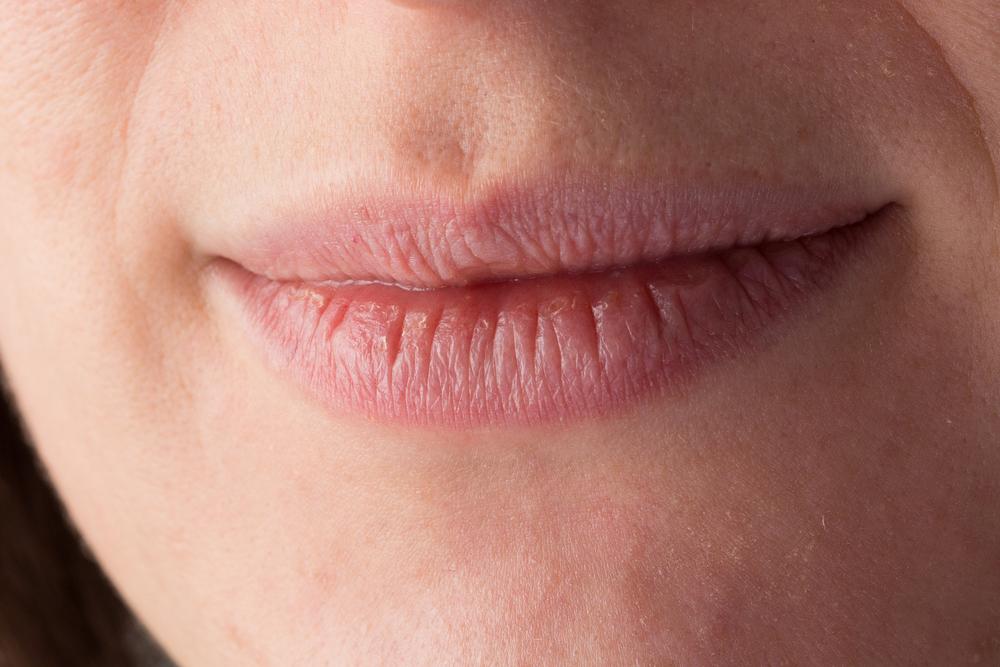 ¿Sequedad en la boca? Esta podría ser señal de otras afecciones médicas