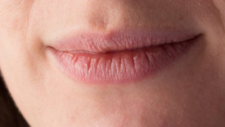 La boca seca podría ser manifestación de otras afecciones médicas. (Foto Prensa Libre: Servicios).