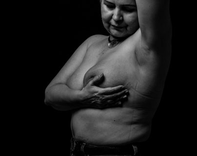 Estrella Rodríguez, mujer de 60 años, paciente oncológica diagnosticada en el año 2017, posa para un retrato. (Foto Prensa libre EFE)
