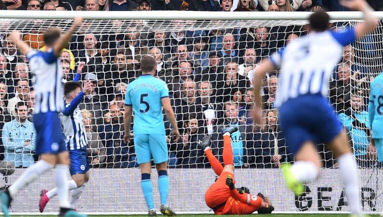 Hugo Lloris sufrió una dura lesión durante el partido de su equipo Tottenham contra el Brighton. (Foto Prensa Libre: AFP).