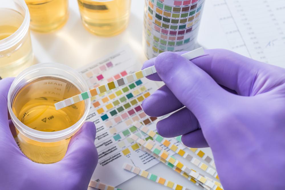 mayo clínica sangre en las causas de la orina