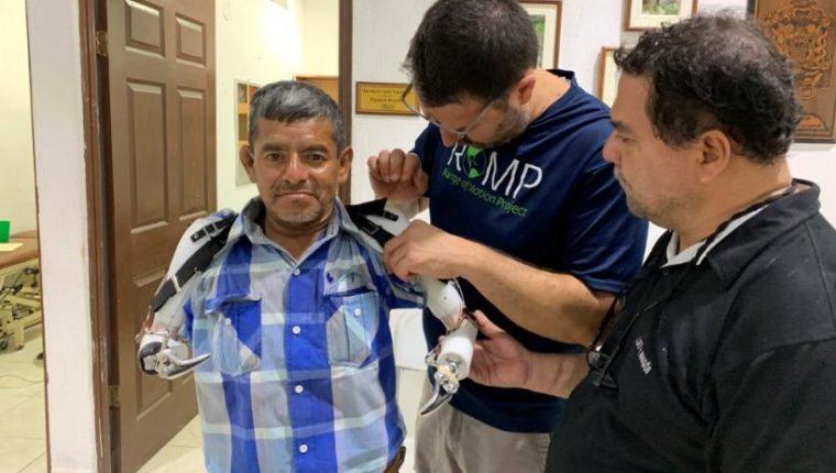 Cipriano Álvarez ahora tiene un juego de prótesis, gracias a las cuales espera volver a trabajar. (Foto Prensa Libre: Cortesía)