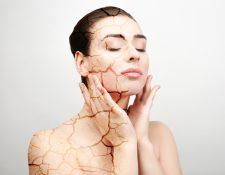 La piel seca surge debido a la deshidratación de las capas externas de la piel. (Foto Prensa Libre: Servicios).