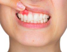 La gingivitis es una enfermedad que provoca inflamación y sangrado de las encías. Puede revertirse en cuestión de meses mejorando su higiene dental y con la ayuda de un profesional. (Foto Prensa Libre: Servicios)