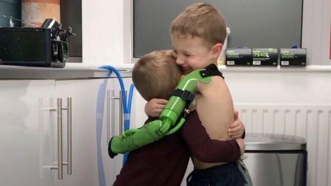 Jacob ay su hermano se abrazaron luego de recibir la prótesis. BEN RYAN