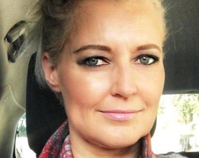 Kerry Van Der Merwe sufre de pecho hendido y quiere crear conciencia sobre la condición.