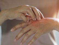 Las personas que tienen dermatilomanía pueden pellizcar o rascar lunares, pecas, marcas o cicatrices para suavizarlos o perfeccionarlos.
