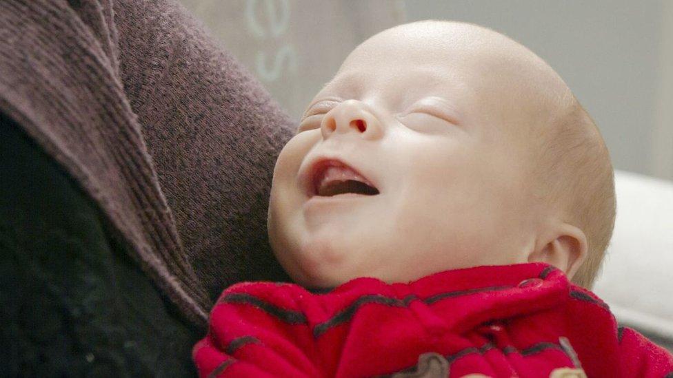 """El """"bebé milagro"""" que nació gracias al trasplante de útero de una donante muerta"""