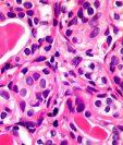 La nueva técnica podría matar una amplia gama de células cancerosas, incluidas las de mama y próstata. SCIENCE PHOTO LIBRARY