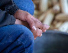 En el 2019, al menos 77 niños menores de 5 años murieron por desnutrición aguda. (Foto HemerotecaPL)