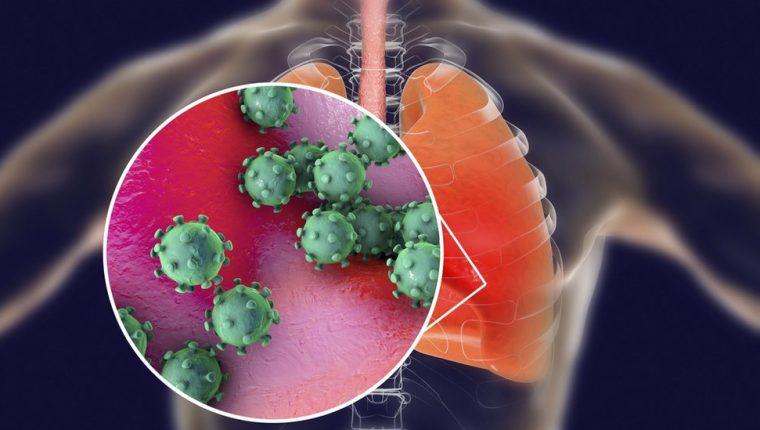 El coronavirus puede causar lesiones severas en los pulmones. GETTY IMAGES