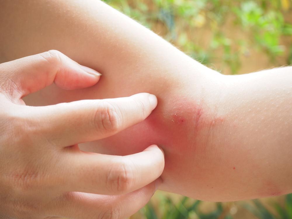 picadura con inflamacion y dolor