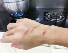 Las quemaduras presentan enrojecimiento y dolor, según su gravedad. (Foto Prensa Libre: Servicios).