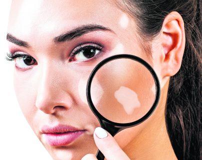 Ser diagnosticado con vitiligo podría requerir de apoyo psicológico.  (Foto Prensa Libre: Servicios).