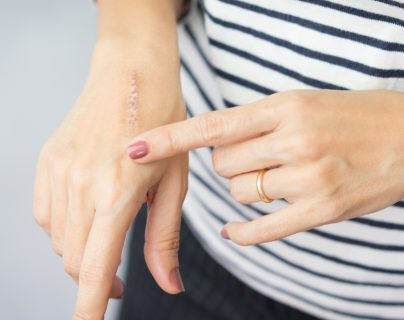 El cuidado de cicatrices es diferente en cada persona, pero hay cuidados básicos que son beneficiosos para todos. (Foto Prensa Libre: Servicios).