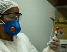 La falta de pruebas en Latinoamérica puede afectar el número de muertes que se están contabilizando a causa del coronavirus.
