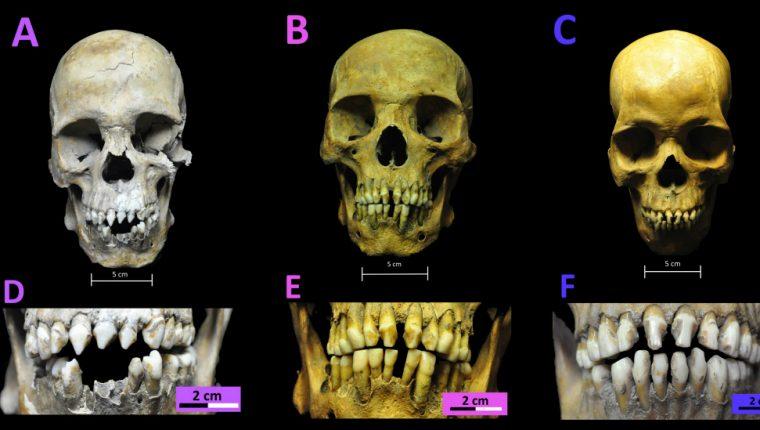 Los esqueletos fueron localizados en una fosa común del siglo XVI. RODRIGO BARQUERA