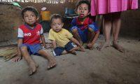 La desnutrición aguda se ensaña principalmente con la niñez del Corredor Seco.  (Foto Prensa Libre: Érick Ávila)