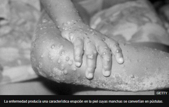 Coronavirus: la viruela, la única enfermedad humana que ha sido erradicada y qué lecciones dejó para enfrentar la pandemia de covid-19