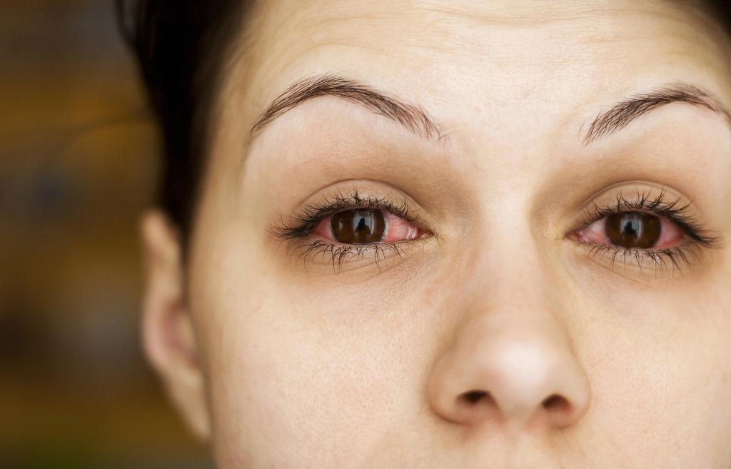 Las causas de la conjuntivitis y lo que no sabía de esta inflamación