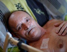 Alain Cocq, de 57 años, sufre una enfermedad rara que pega las paredes de sus arterias. Foto Prensa Libre:  BBC