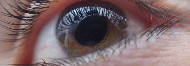 El glaucoma es la tercera causa de ceguera en el mundo. (Foto Prensa Libre: Pixabay)