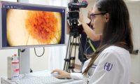 El diagnóstico temprano del cáncer, como el de piel, ayuda a recibir un tratamiento oportuno y tener una sobrevida.
