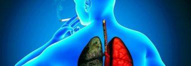 El consumo de tabaco es una de las principales causas de los problemas pulmonares. (Foto Prensa Libre: Hemeroteca PL).