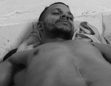 Maykel Castillo es uno de los miembros del Movimiento que se puso en huelga de hambre y sed hace una semana. KATHERINE BISQUET