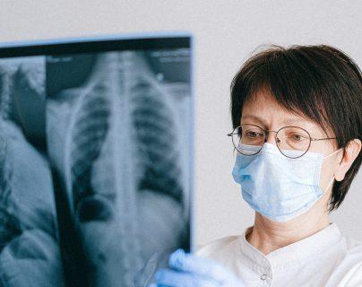 La ciencia busca soluciones para apoyar a  los pacientes con cáncer de pulmón avanzado.  (Foto Prensa Libre: Anna Shvets/Pexels)