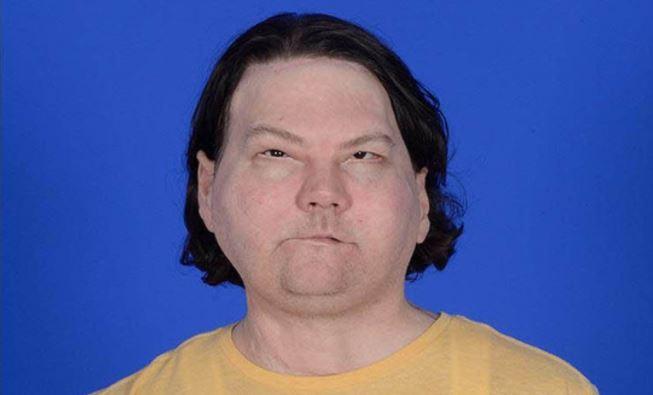 Joe DiMeo, el hombre que recibió un trasplante de cara y manos que aprende a sonreír, parpadear y pellizcar
