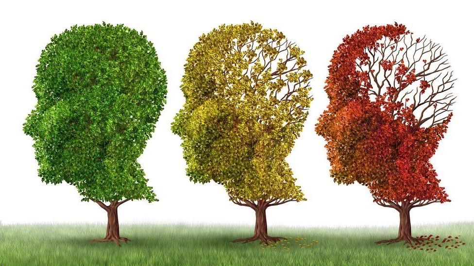 ¿Por qué aún no hay cura para el alzhéimer si se detectó hace más de 110 años?