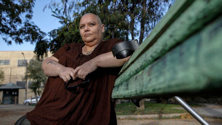La activista chilena por el derecho a una muerte digna, Cecilia Heyder, quien padece cáncer metastásico, lupus y un trastorno sanguíneo. (Foto Prensa Libre: AFP)