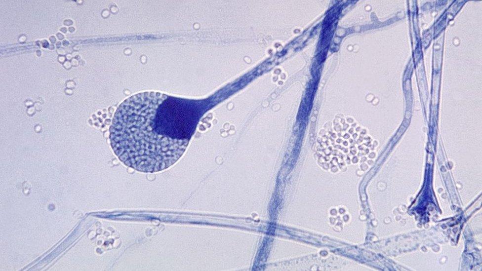 Hongo negro: 5 preguntas clave sobre la rara infección fúngica que ataca a pacientes de covid-19 en India