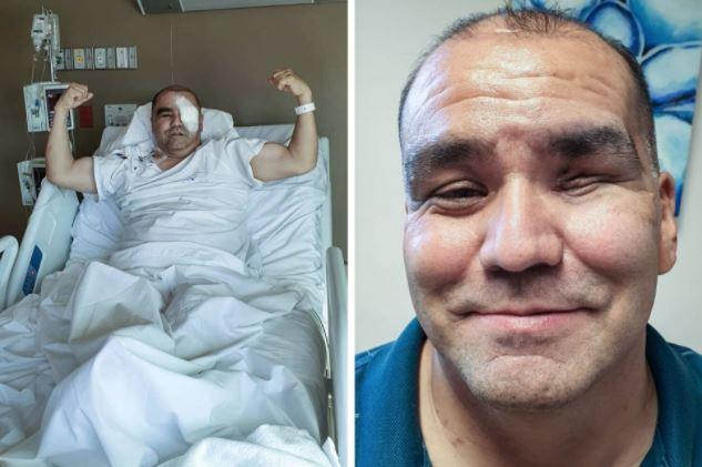 """""""Me despertaba en la madrugada llorando del dolor"""": el dramático relato de un sobreviviente del terrorífico hongo negro"""
